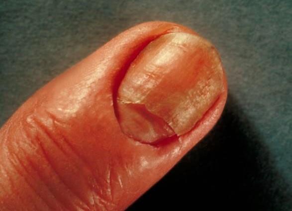 candidiasis_nail_infection.jpg